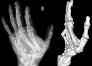 Рентгеновский снимок перелома костей кисти