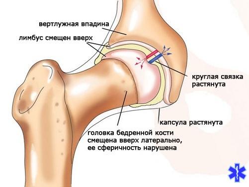 Вывих эндопротеза тазобедренного сустава - симптомы и лечение