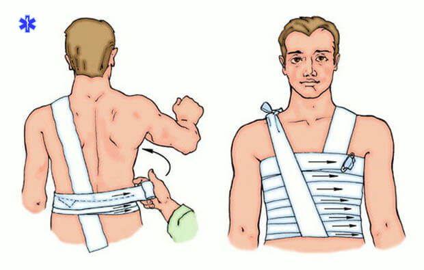 Спиралевидная повязка на грудную клетку