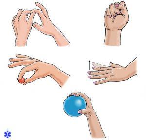 Упражнения для восстановления работоспособности пальцев руки после вывиха