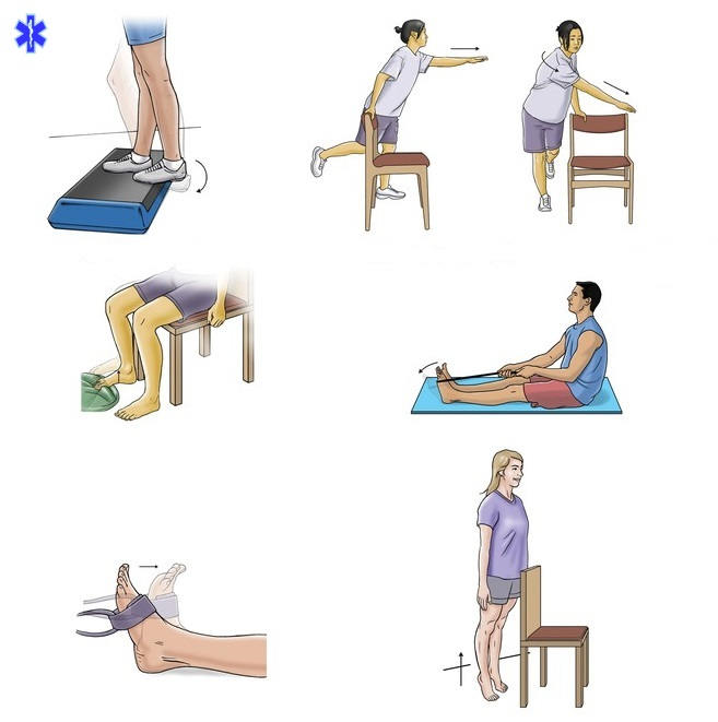 Зарядка после перелома ноги начала ходить картинки