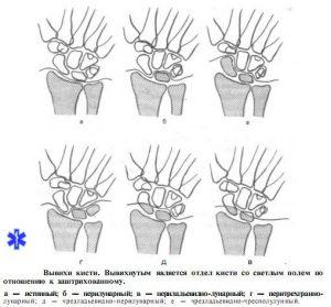 Виды вывихов кистей рук