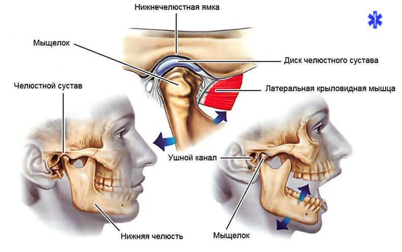 Подвывих сустава челюсти при зевании лечение болей в плечевом суставе по методу бубновского