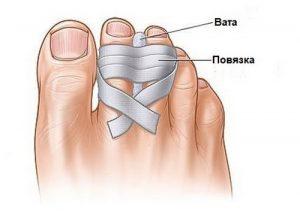 Наложение повязки при ушибе пальцев ног