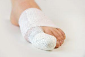Особенности ушиба пальца на ноге