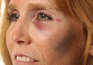 Ушиб мягких тканей лица
