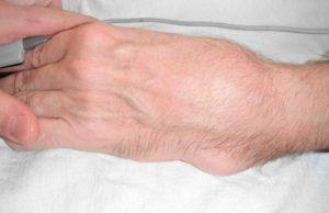 Безболезненная подвижность кости в месте перелома