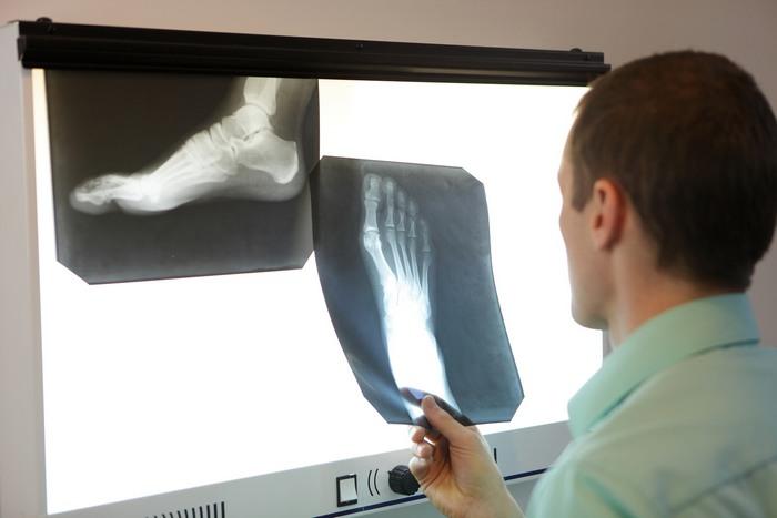 Ложный сустав лечение после перелома