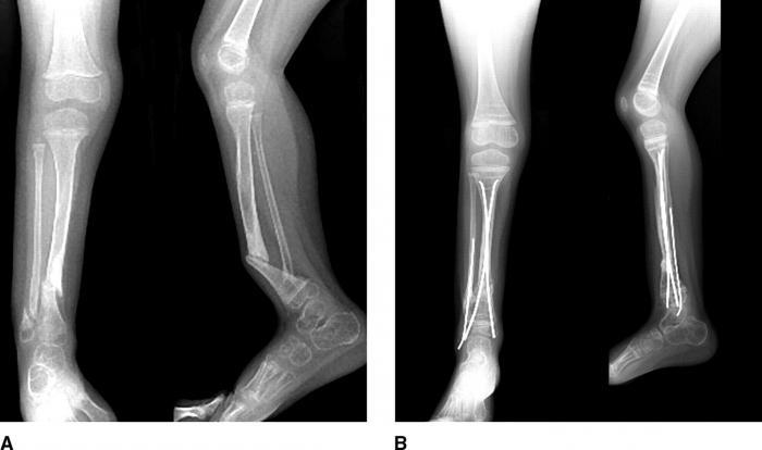 Что такое ложный сустав при переломе плеча что делать если опух сустав на пальце ноги