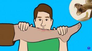 При укусе змеи отсосать яд из раны