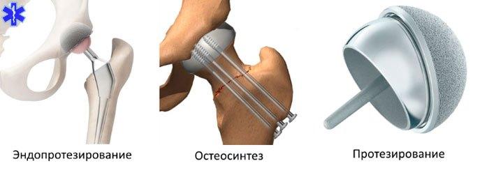 Хирургия предлагает следующие методы лечения при переломе шейки бедра