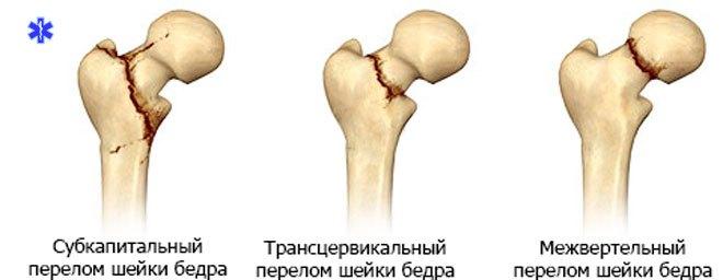 Классификация типичных переломов шейки бедренной кости