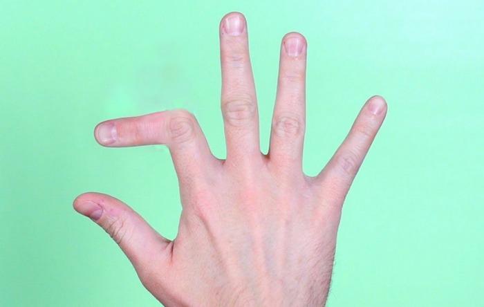 Особенности перелома пальца на руке