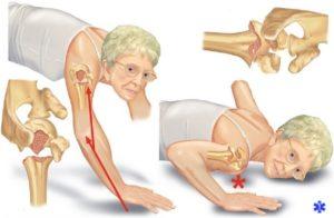 Переломы анатомической шейки плечевой кости происходят в пожилом возрасте при падении
