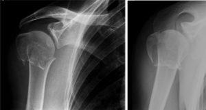 Рентгенография для уточнения характера травмы хирургической шейки плечевой кости
