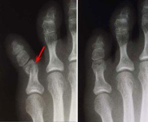 Идентифицировать перелом одной из фаланг пальца руки от других травм позволяет рентгенография