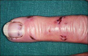 На пальце видны несколько укусов крысы