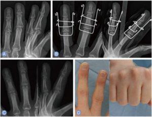 Операция требуется в сложных случаях