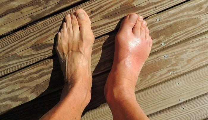 Ушиб и опухание ноги что делать
