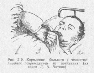 Как кушать при шинировании челюсти