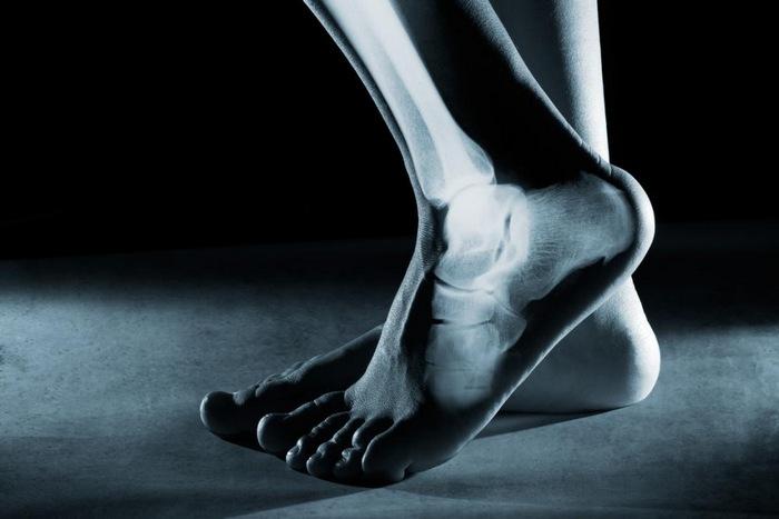 Образование костной мозоли при переломе