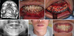 Сроки иммобилизации шиной после перелома челюсти