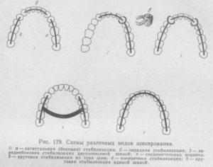 Виды шинирования при переломе челюсти
