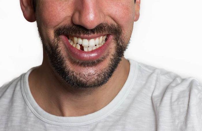 Что делать если вам выбили зуб