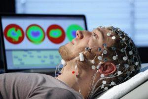 Электроэнцефалография при травме головного мозга проводят для обнаружения нарушений в прохождении биотоков
