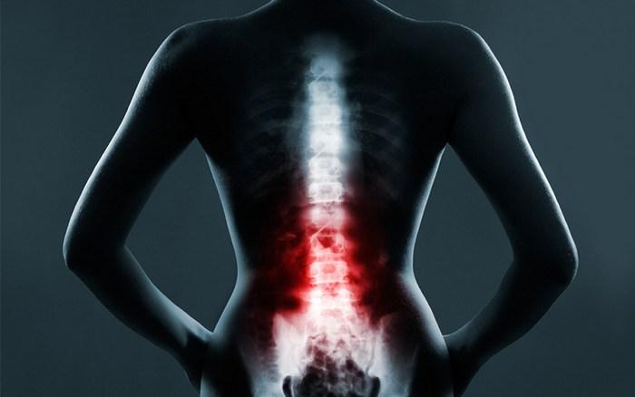Особенности травм позвоночника