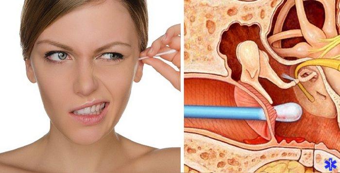 Повредить ухо можно ватной палочкой при выполнении гигиенических процедур