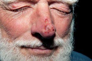 Особенности отморожения носа