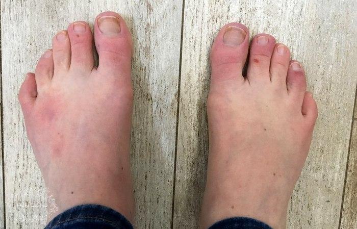 Особенности отморожения пальцев ног