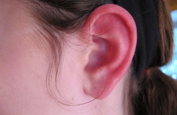 Особенности отморожения уха