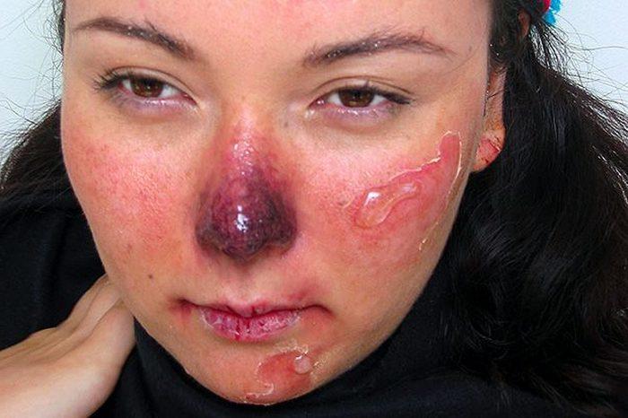 При более сильном замерзании кожа белеет, а затем синеет