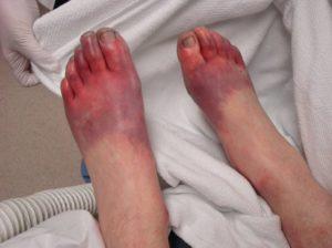 Ноги чаще других частей тела подвергаются отморожению