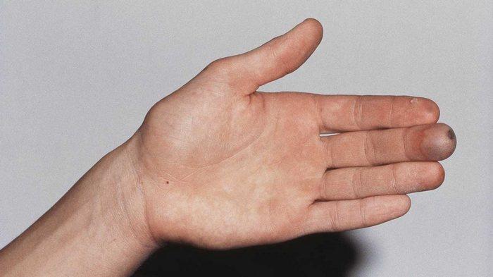 Особенности отморожения кожи