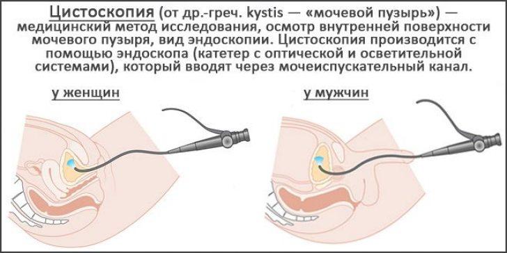 Для оценки состояния мочевыводящего канала и мочевого пузыря показана цистоскопия
