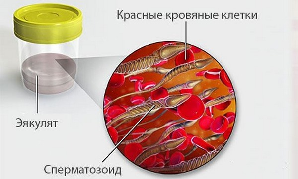 Кровь в сперме может быть следствием ложной гемоспермии