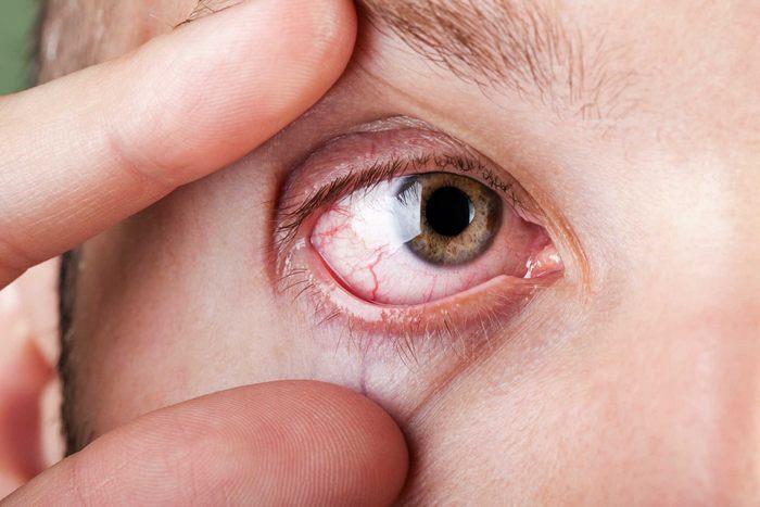 Кровотечение из глаза