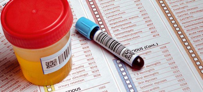 Обнаружить никотин можно в ходе лабораторного исследования крови