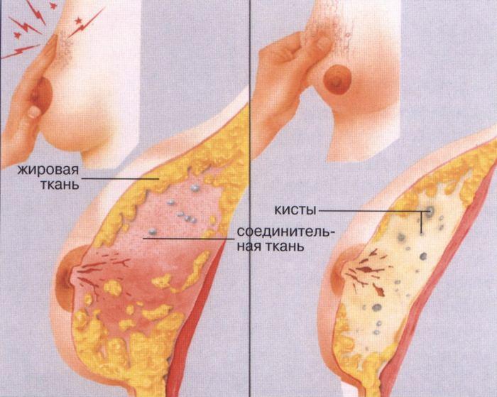 Появлению опухолей предшествует мастопатия