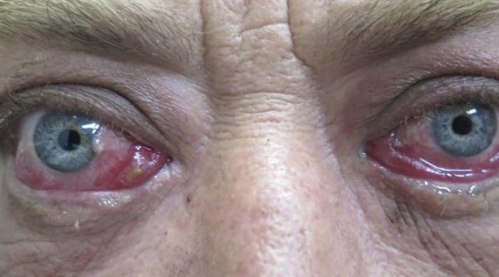 Покраснение белков и разрывом сосудистых стенок нередко является следствием глаукому