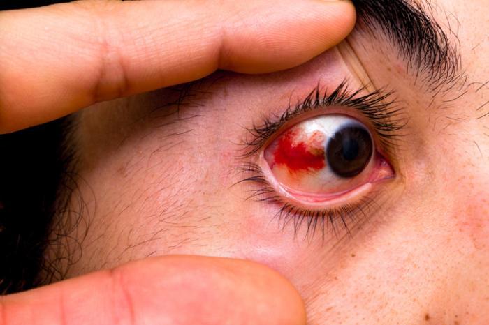 Повреждения глазных капилляров