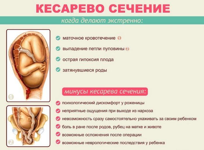 Зачем делают кесарево сечение